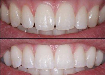 Cosmetic Dentistry | Wolverhampton | Wightwick Dental Practice