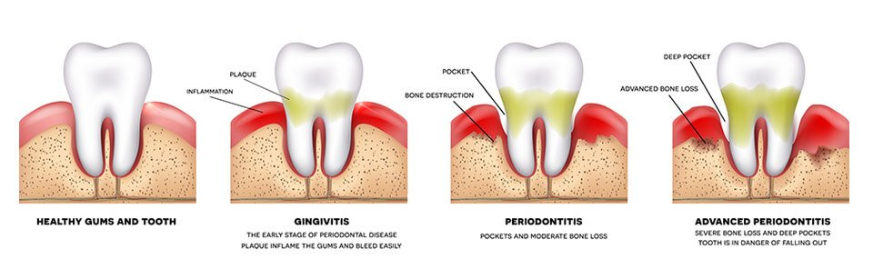 Periodontal Gum Treatment, Wolverhampton