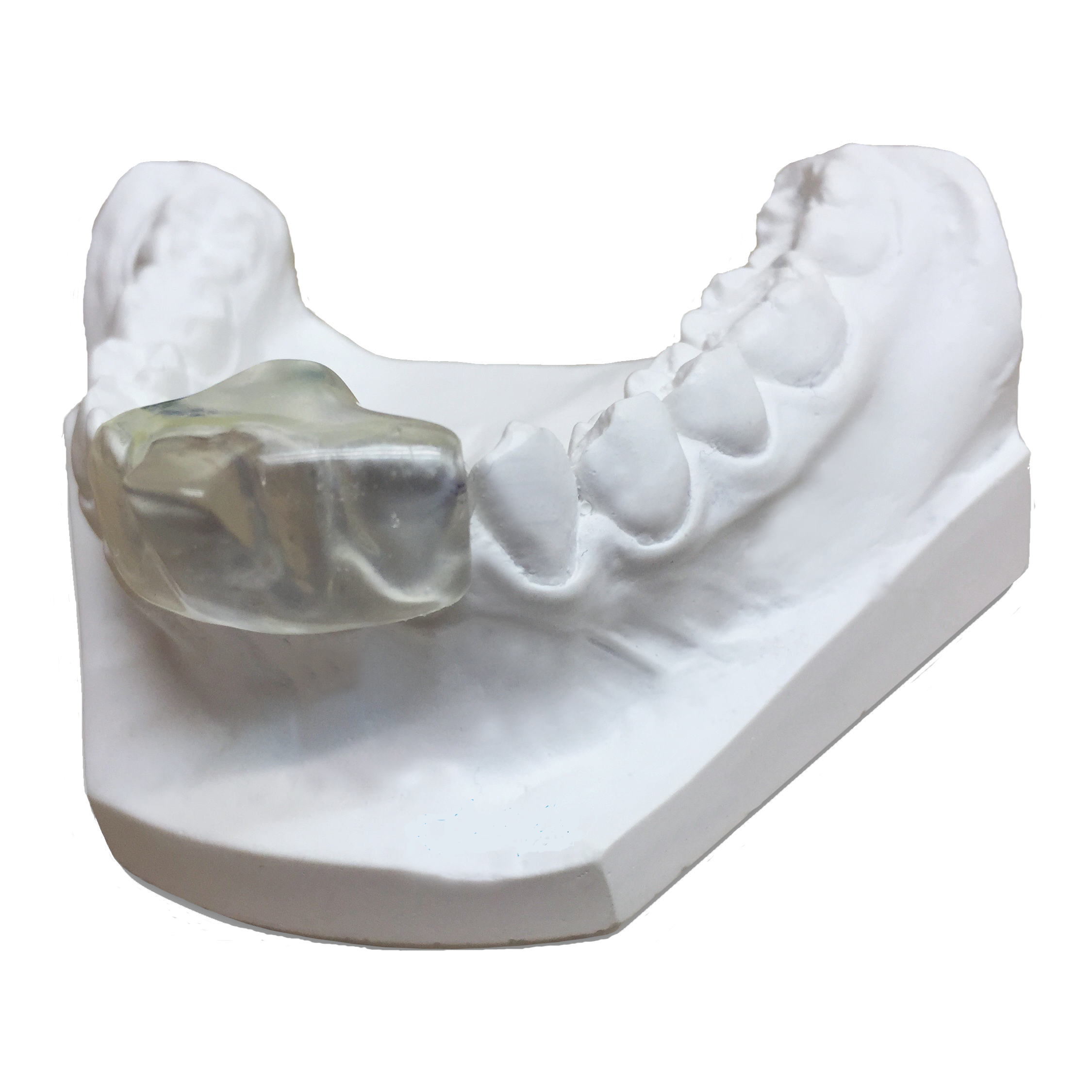 Bruxism Device